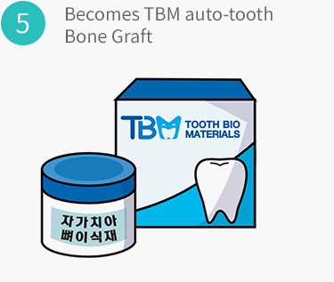 Becomes TBM auto-tooth Bone Graft