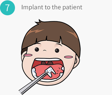 Implant to the patient